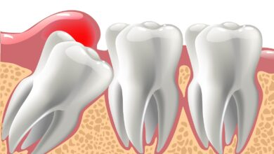 Photo of What Would Be The Exact Causes To Have Your Wisdom Teeth Melbourne