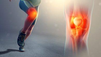 Photo of 10 Ways to Avoid Knee Pain Disorders