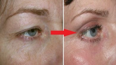 Photo of 4 Natural Remedies For Loose Eyelid Lifts
