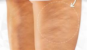 Photo of Natural tips and treatments for cellulite