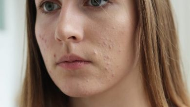Photo of Too much red skin pain: Should you be worried?