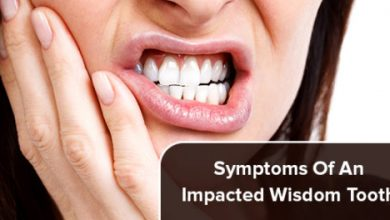 Photo of Common Symptoms of an Impacted Wisdom Tooth