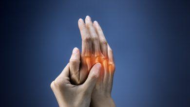 Photo of For treating rheumatic joint irritation using Hydroxychloroquine