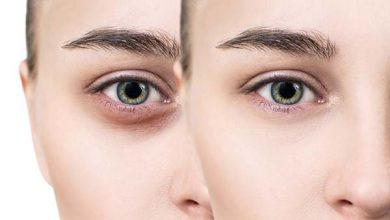 Photo of How to Remove Dark Circles around Eyes?