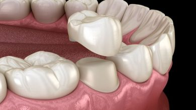 Photo of How Well Do You Know a Root Canal Treatment and Placing of the Crown?