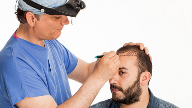 Photo of How Much Money Does a Hair Transplant Cost?