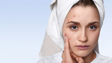 Photo of Tips To Remove Pigmentation Permanently from the Face Naturally
