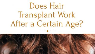 Photo of Does Hair Transplant Work After a Certain Age?