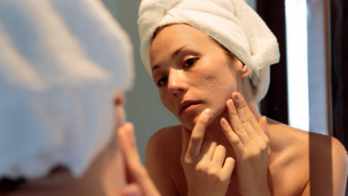 Photo of What is the best treatment for acne scars?