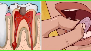 Photo of How to Get Emergency Toothache Relief