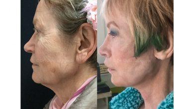 Photo of Laser Facelifts, What's Rejuvenation Surgery