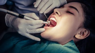 Photo of Why Should You Use Dental Implants?