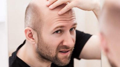 Photo of Say 'No!' to Balding With a Hair Loss Remedy