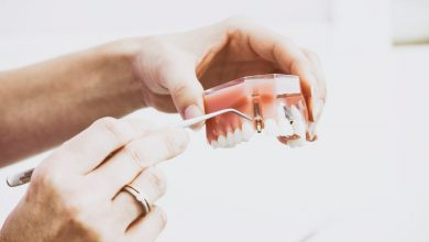 Photo of What Is a Dental Implant Abutment?: The Facts, Revealed